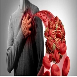 Heart/ Artery Blockage Clear Natural Herbal Treatment