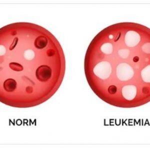 Leukemia – Blood Cancer Natural Treatment